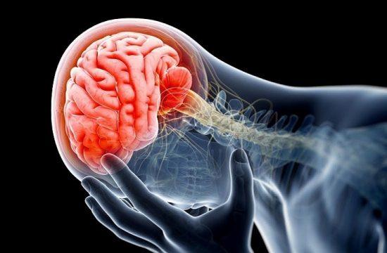 Que es una isquemia cerebral