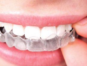Tres problemas orales que puedes prevenir con Invisalign